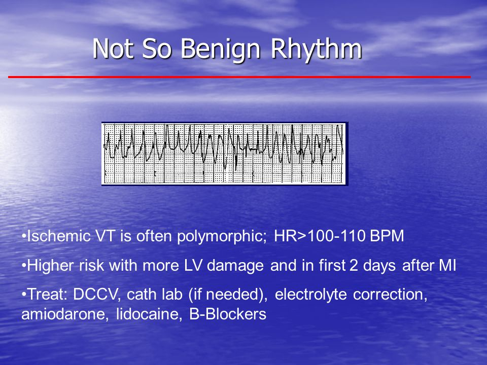 Not So Benign Rhythm Ischemic VT is often polymorphic; HR>100-110 BPM. Higher risk with more LV damage and in first 2 days after MI.