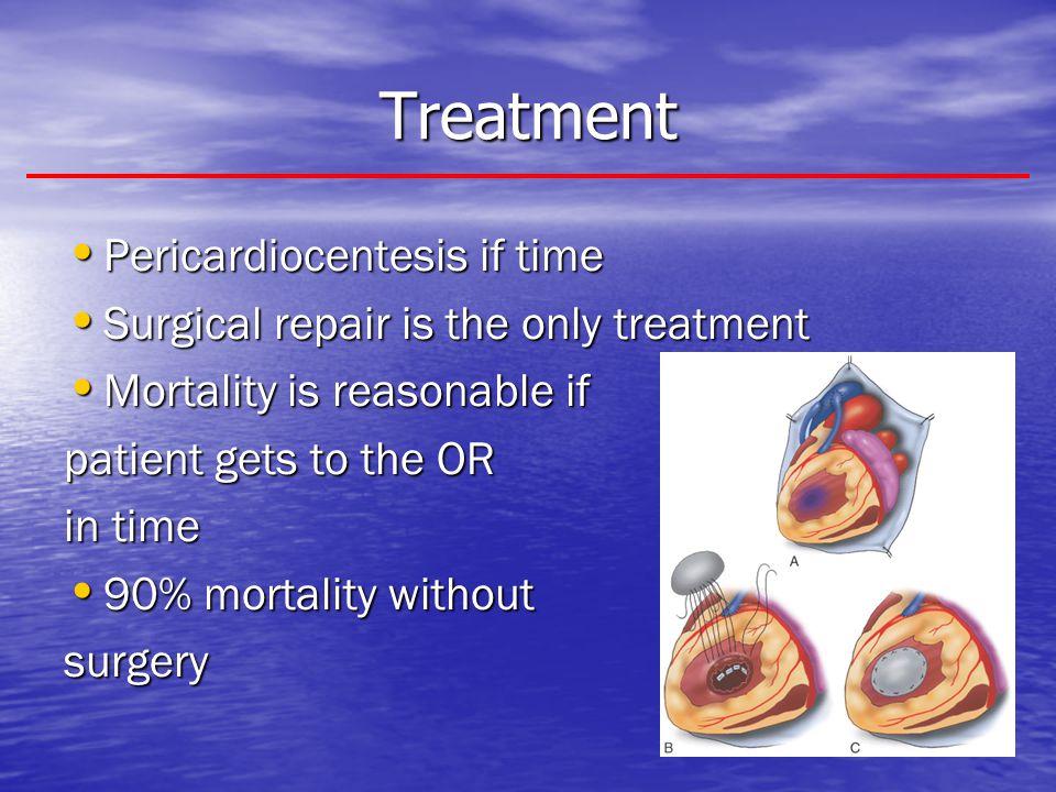 Treatment Pericardiocentesis if time
