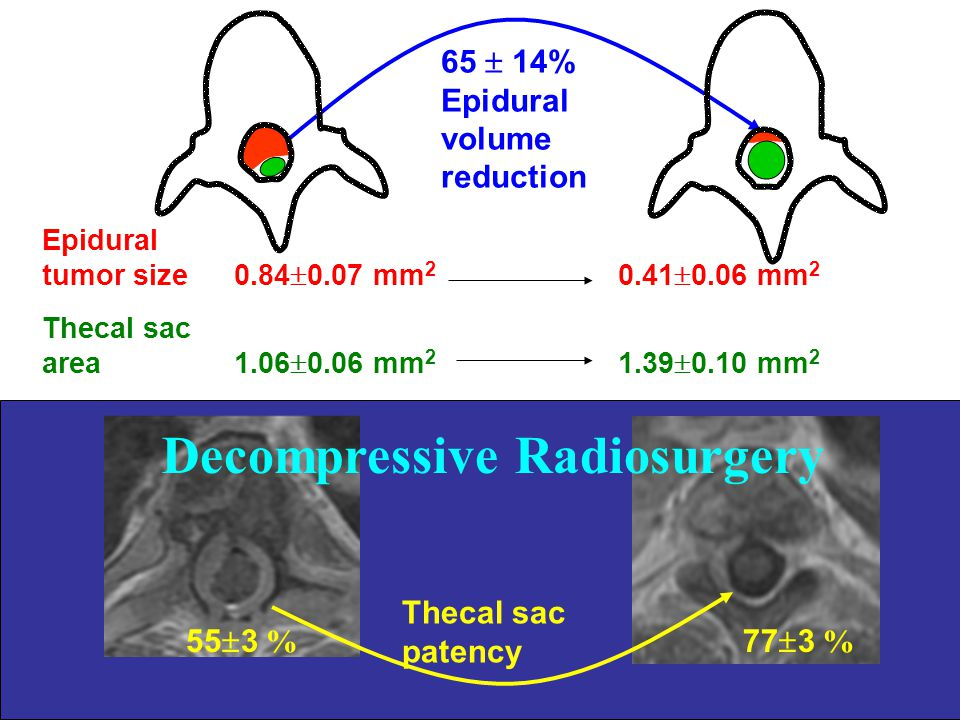 Decompressive Radiosurgery