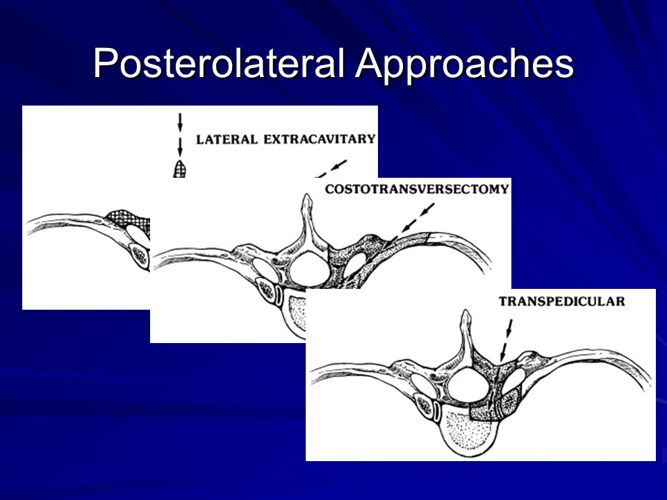 Posterolateral Approaches