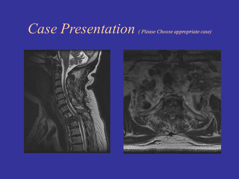 Case Presentation ( Please Choose appropriate case)