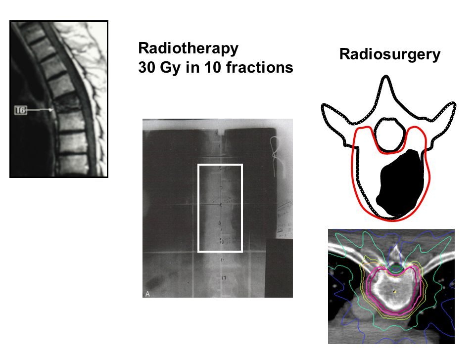Radiotherapy 30 Gy in 10 fractions Radiosurgery
