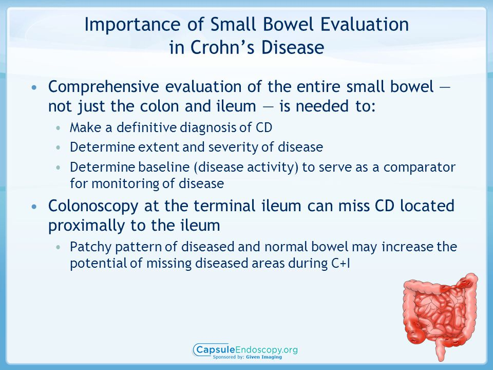 Importance of Small Bowel Evaluation in Crohn's Disease