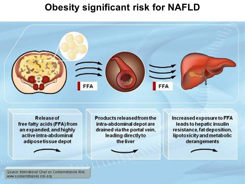 Obesity significant risk for NAFLD