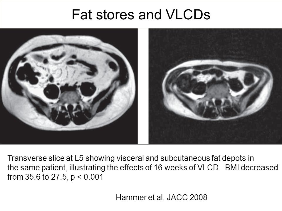 Fat stores and VLCDs Transverse slice at L5 showing visceral and subcutaneous fat depots in.