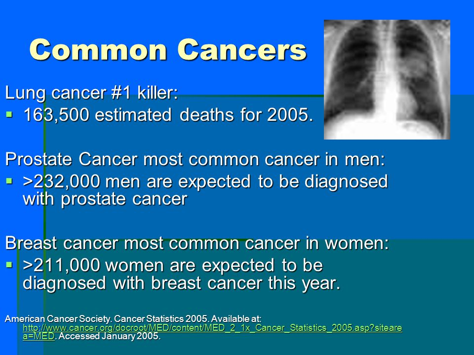 Common Cancers Lung cancer #1 killer:
