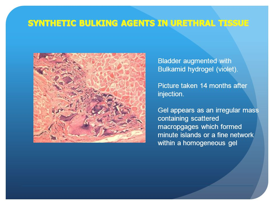 SYNTHETIC BULKING AGENTS IN URETHRAL TISSUE