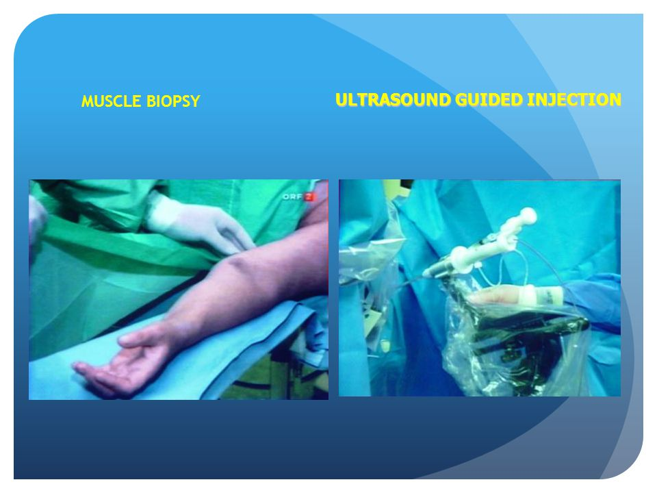 MUSCLE BIOPSY ULTRASOUND GUIDED INJECTION