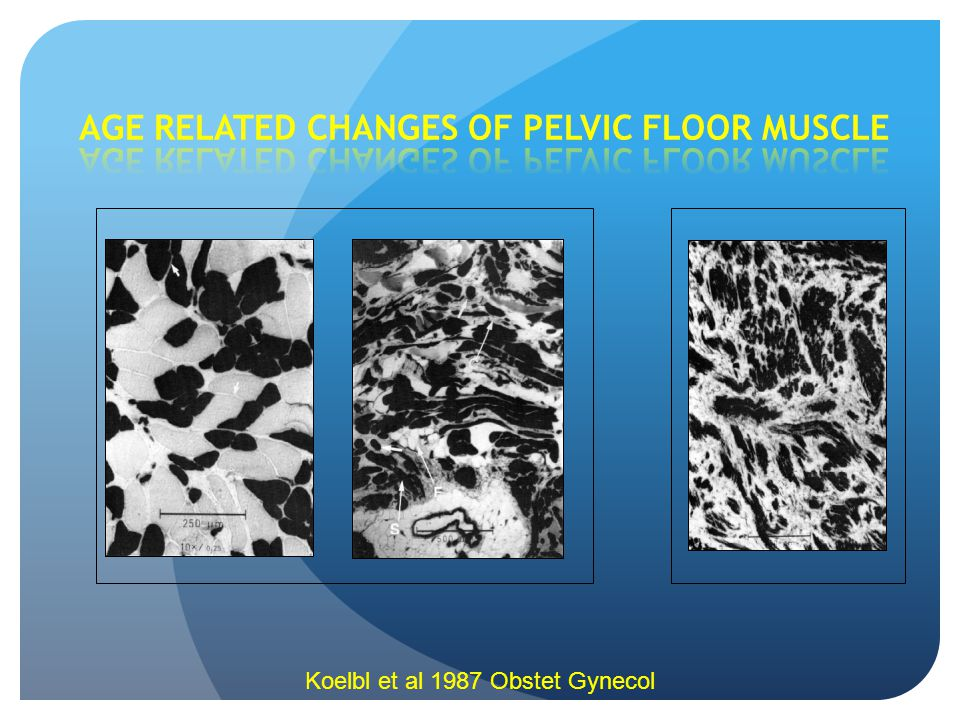 AGE RELATED CHANGES OF PELVIC FLOOR MUSCLE