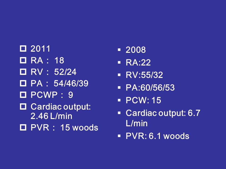 2011 RA: 18. RV: 52/24. PA: 54/46/39. PCWP: 9. Cardiac output: 2.46 L/min. PVR: 15 woods. 2008.