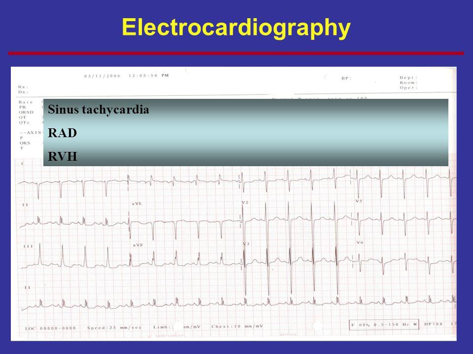 Electrocardiography Sinus tachycardia RAD RVH