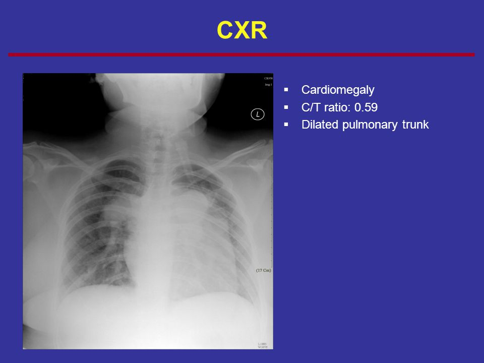 CXR Cardiomegaly C/T ratio: 0.59 Dilated pulmonary trunk