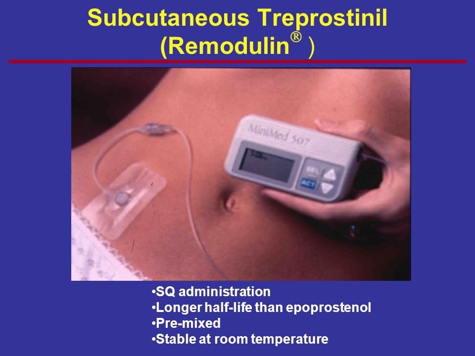 Subcutaneous Treprostinil (Remodulin )