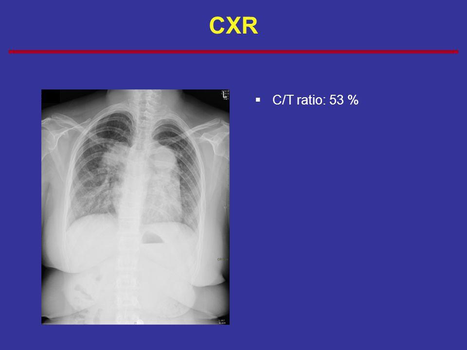 CXR C/T ratio: 53 %