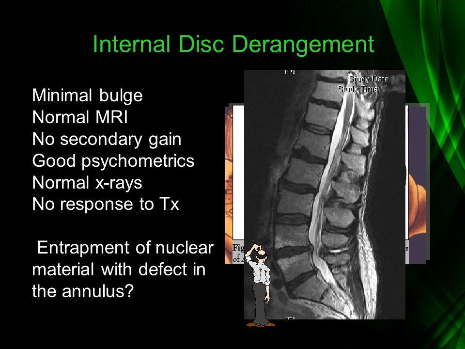 Internal Disc Derangement