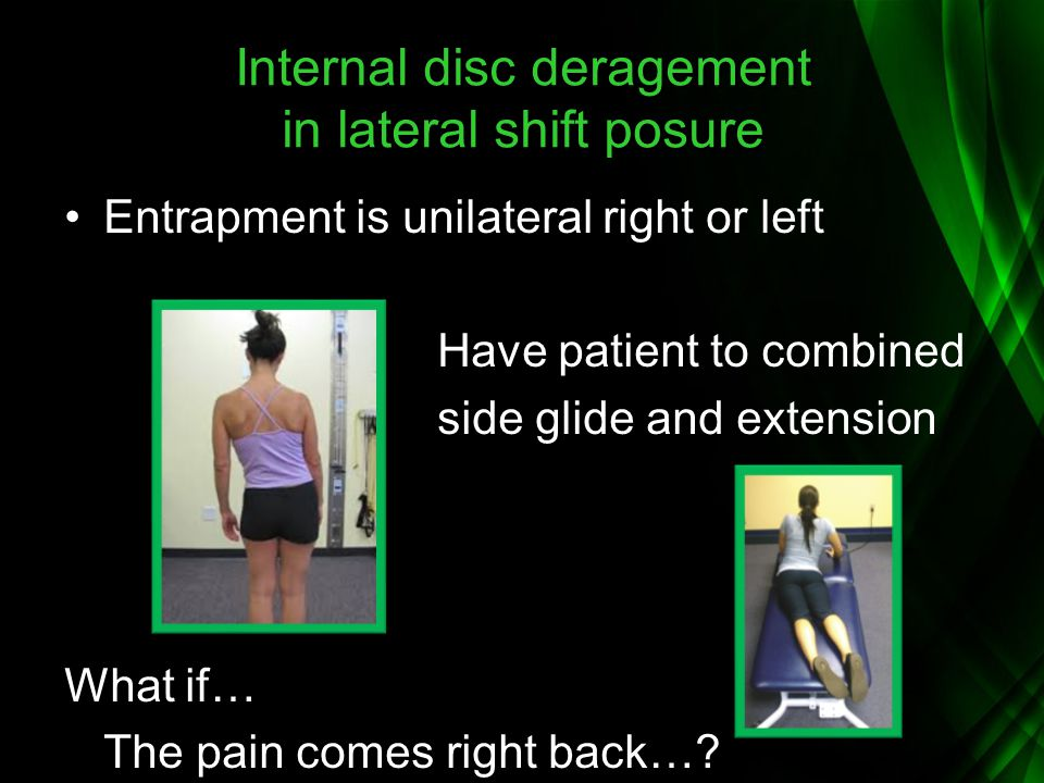 Internal disc deragement in lateral shift posure