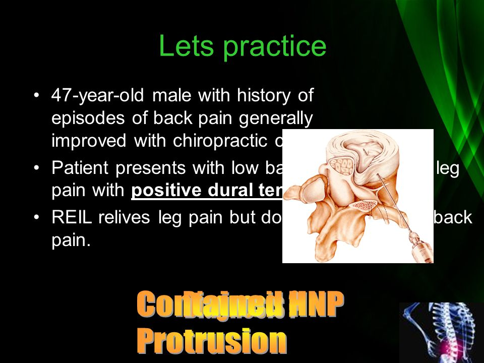 Lets practice Contained HNP Protrusion Diagnosis