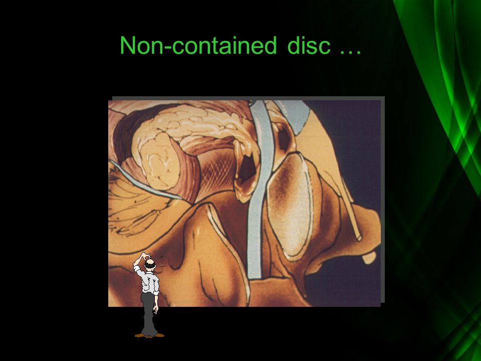 Non-contained disc …