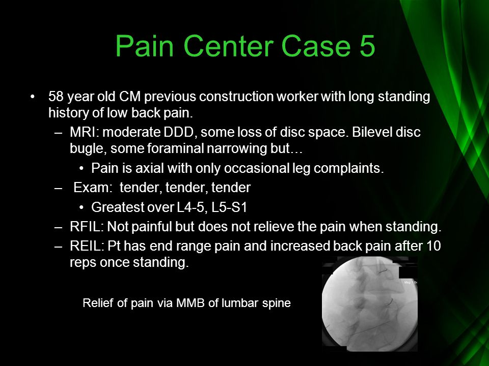 Pain Center Case 5 58 year old CM previous construction worker with long standing history of low back pain.