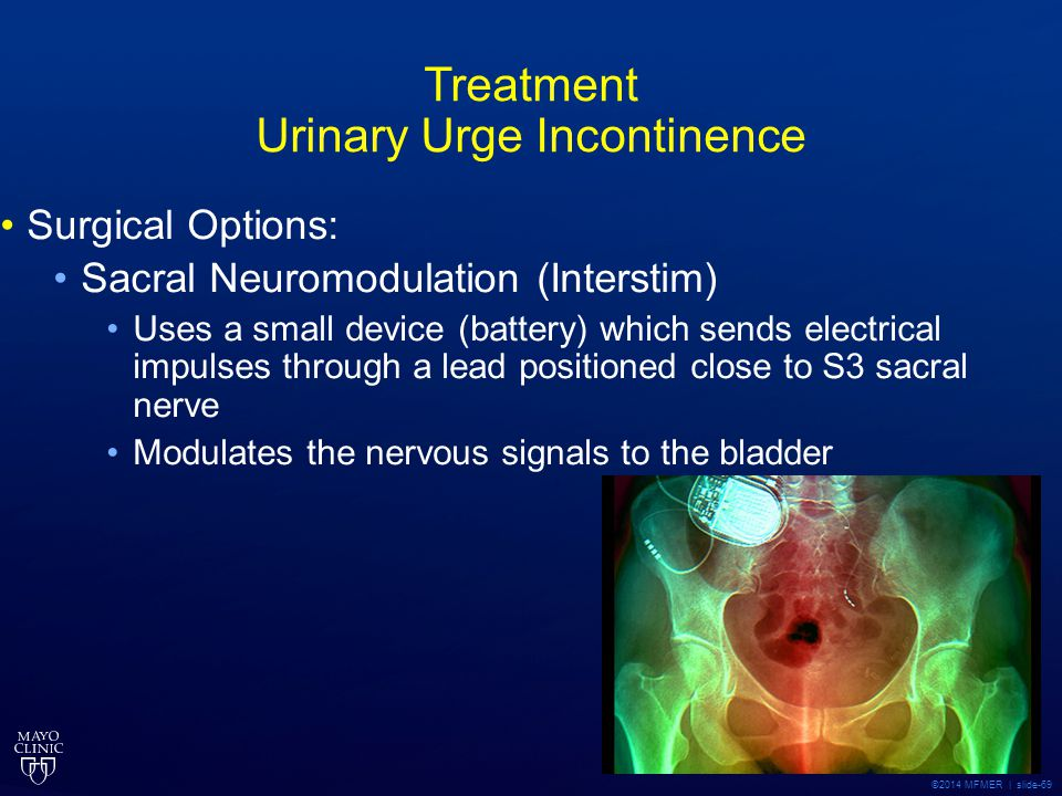 Treatment Urinary Urge Incontinence