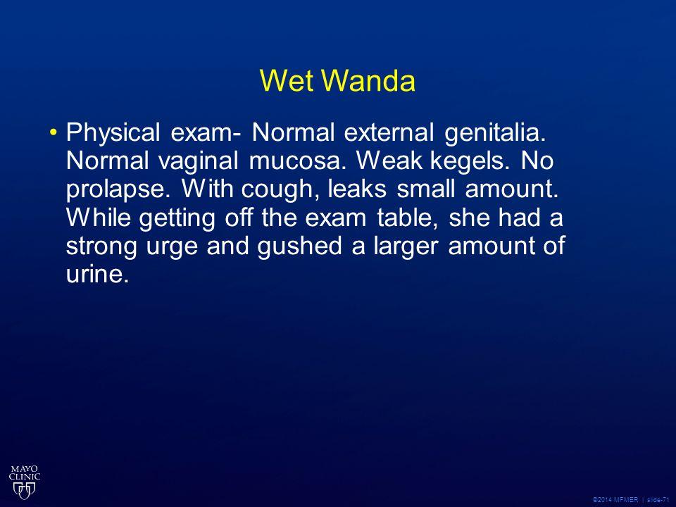 Wet Wanda