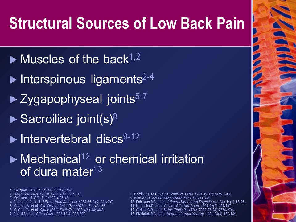 Structural Sources of Low Back Pain