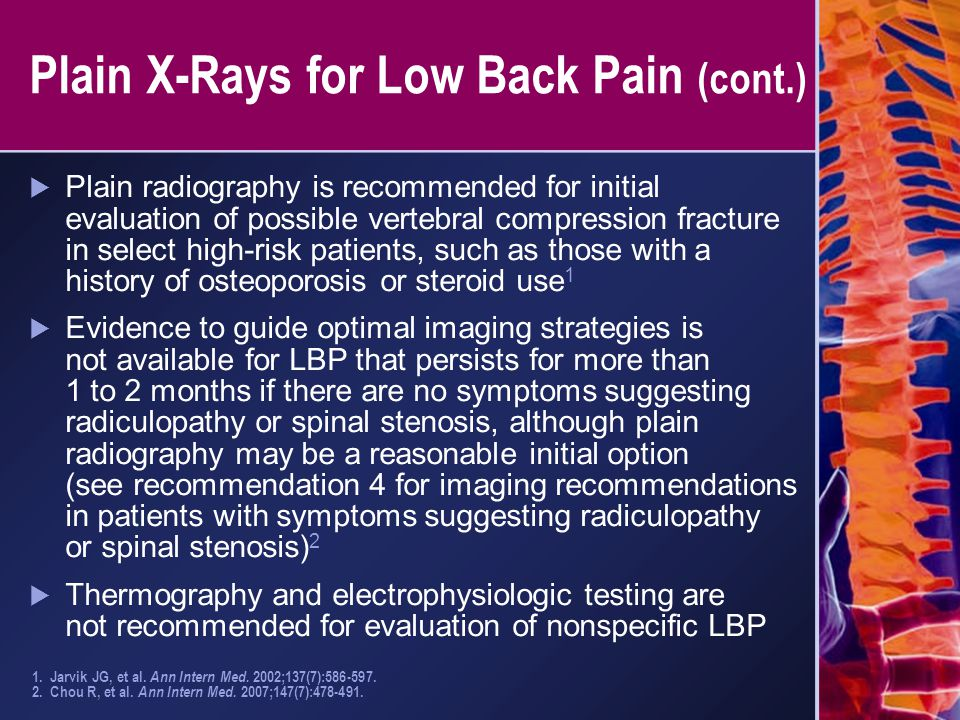 Plain X-Rays for Low Back Pain (cont.)
