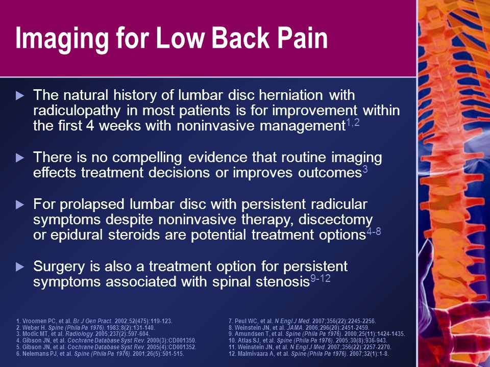 Imaging for Low Back Pain