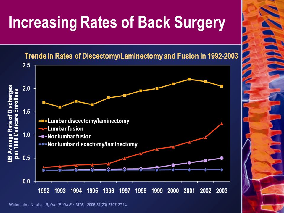 Increasing Rates of Back Surgery