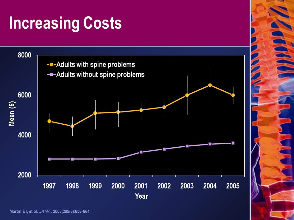 Increasing Costs Mean ($) Year