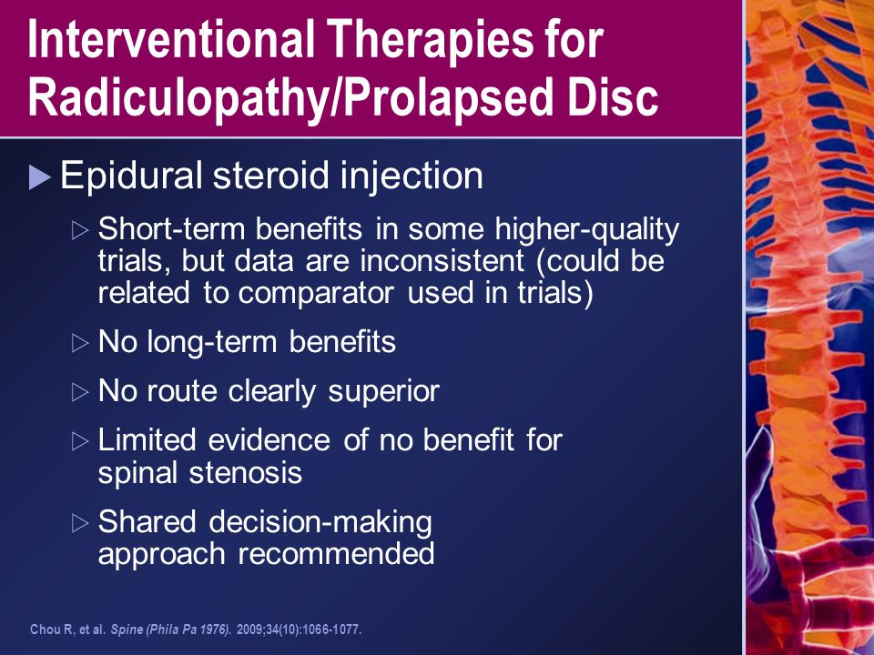 Interventional Therapies for Radiculopathy/Prolapsed Disc