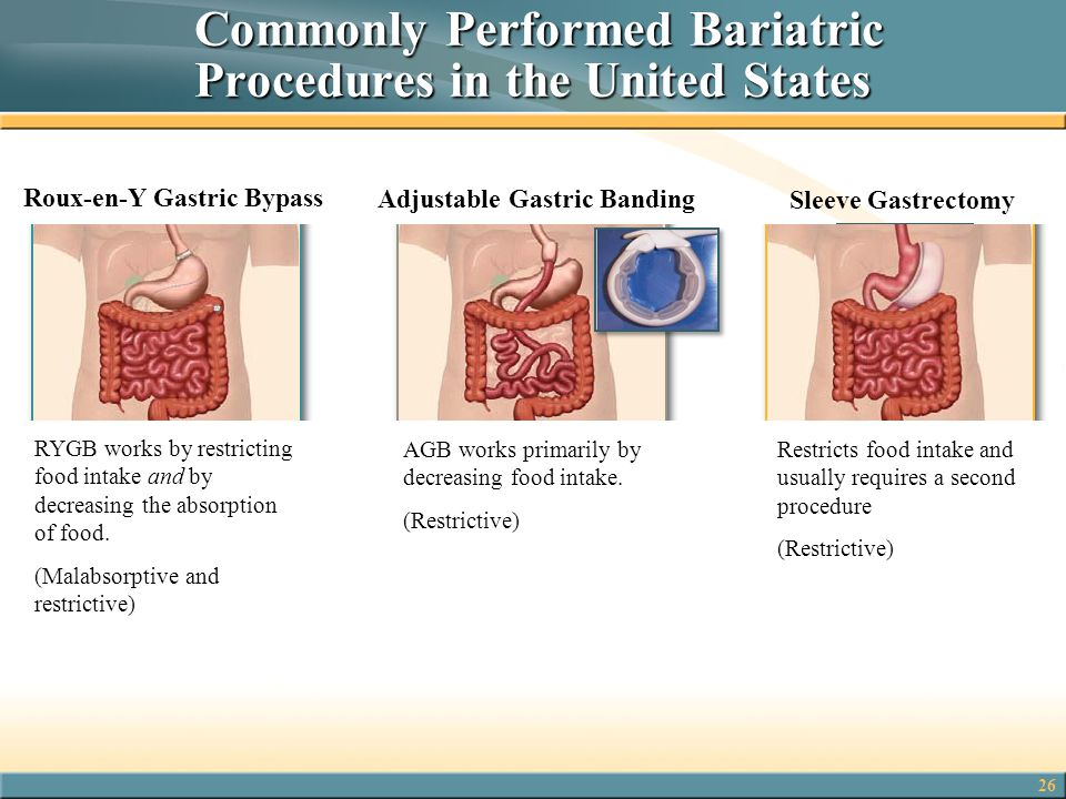 Commonly Performed Bariatric Procedures in the United States