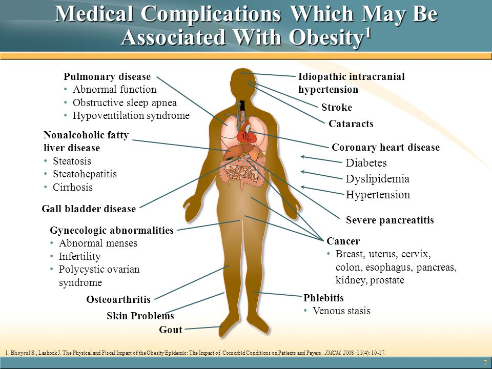 Medical Complications Which May Be Associated With Obesity1