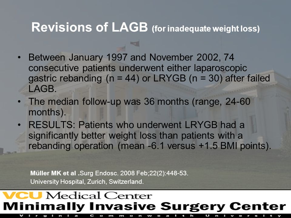 Revisions of LAGB (for inadequate weight loss)