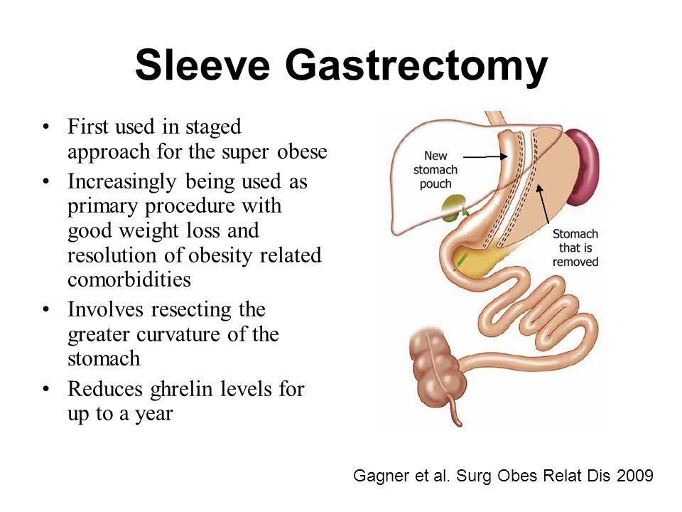 Sleeve Gastrectomy First used in staged approach for the super obese
