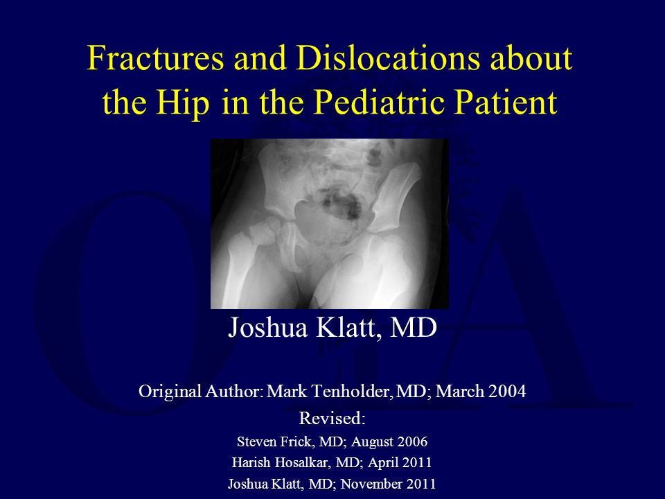 Fractures and Dislocations about the Hip in the Pediatric Patient