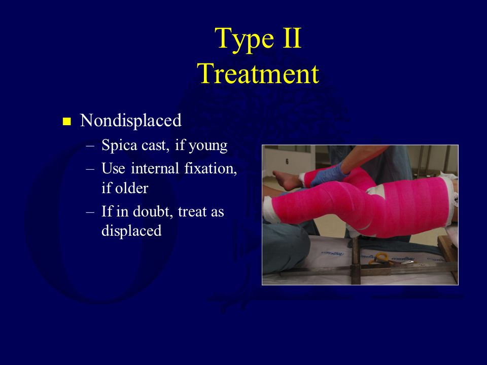 Type II Treatment Nondisplaced Spica cast, if young