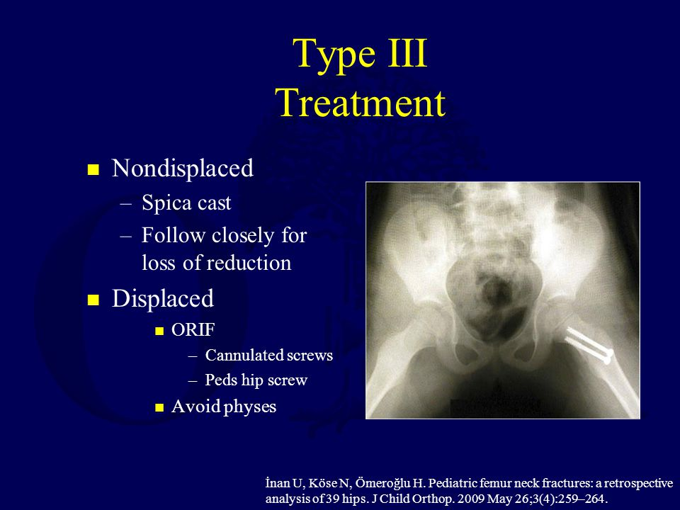 Type III Treatment Nondisplaced Displaced Spica cast
