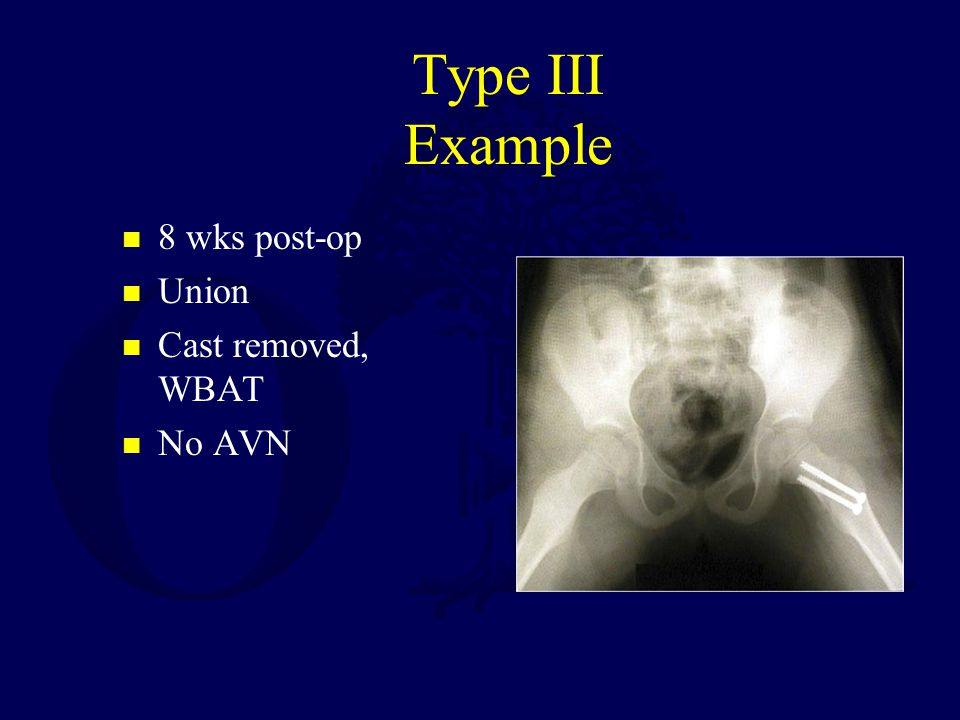 Type III Example 8 wks post-op Union Cast removed, WBAT No AVN