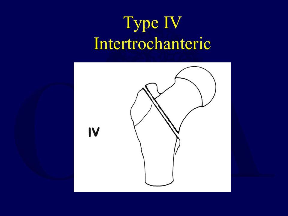 Type IV Intertrochanteric