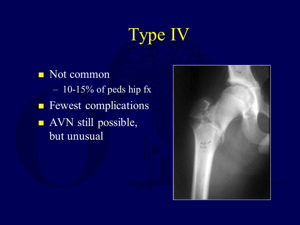 Type IV Not common Fewest complications