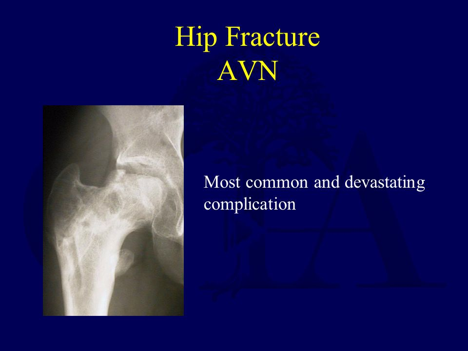 Hip Fracture AVN Most common and devastating complication