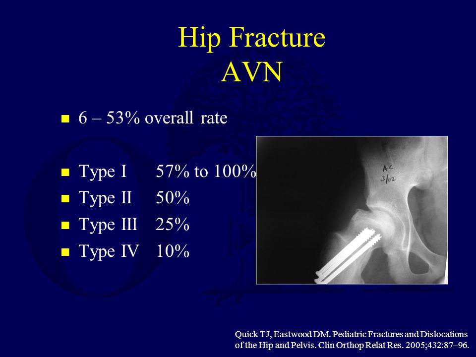 Hip Fracture AVN 6 – 53% overall rate Type I 57% to 100% Type II 50%