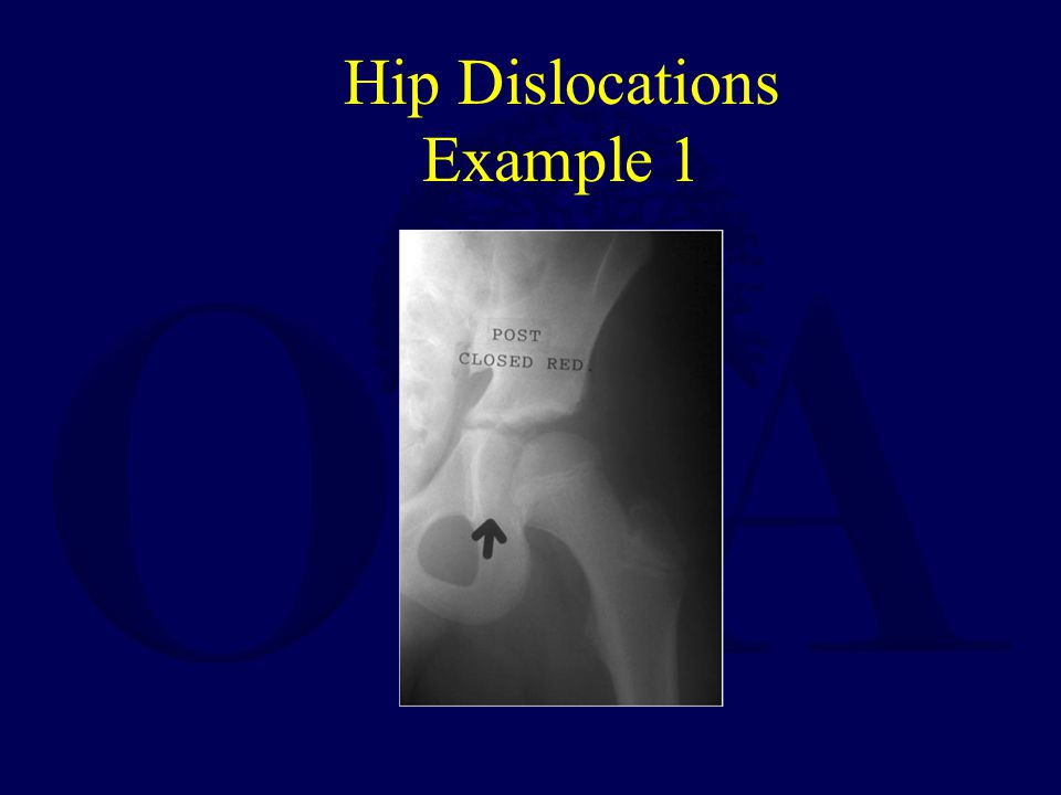 Hip Dislocations Example 1