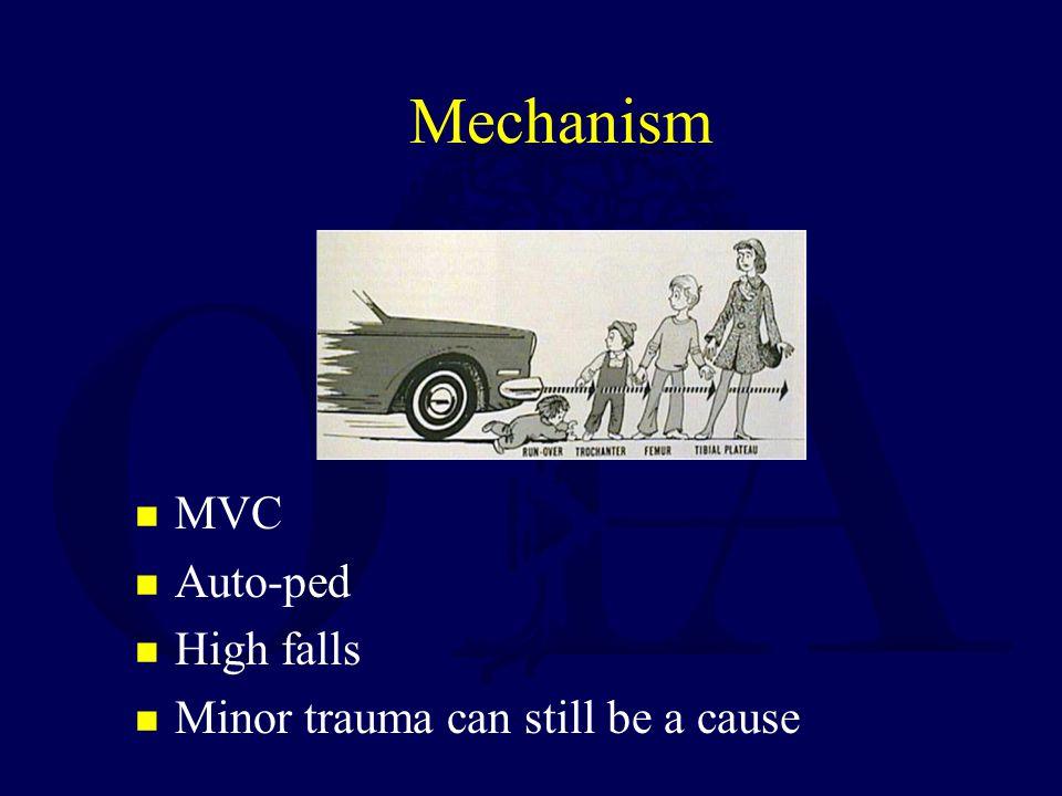Mechanism MVC Auto-ped High falls Minor trauma can still be a cause