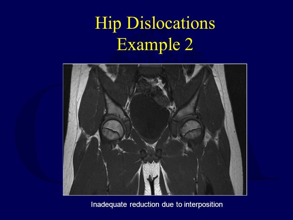Hip Dislocations Example 2
