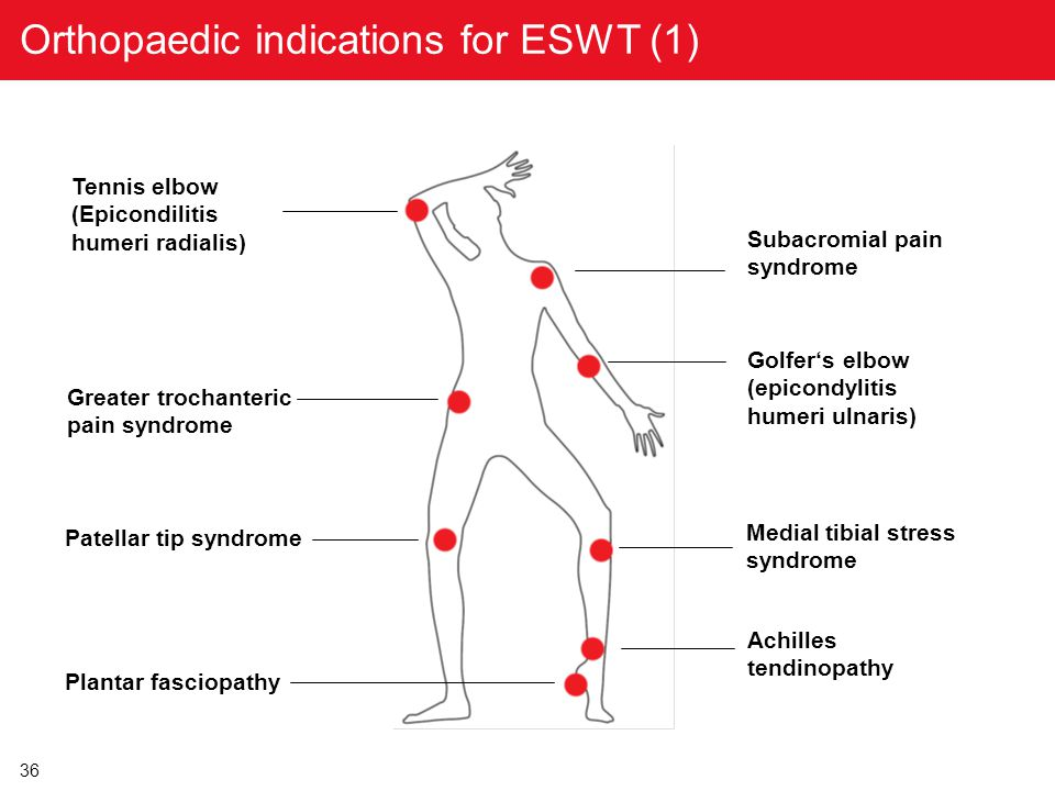 Orthopaedic indications for ESWT (1)