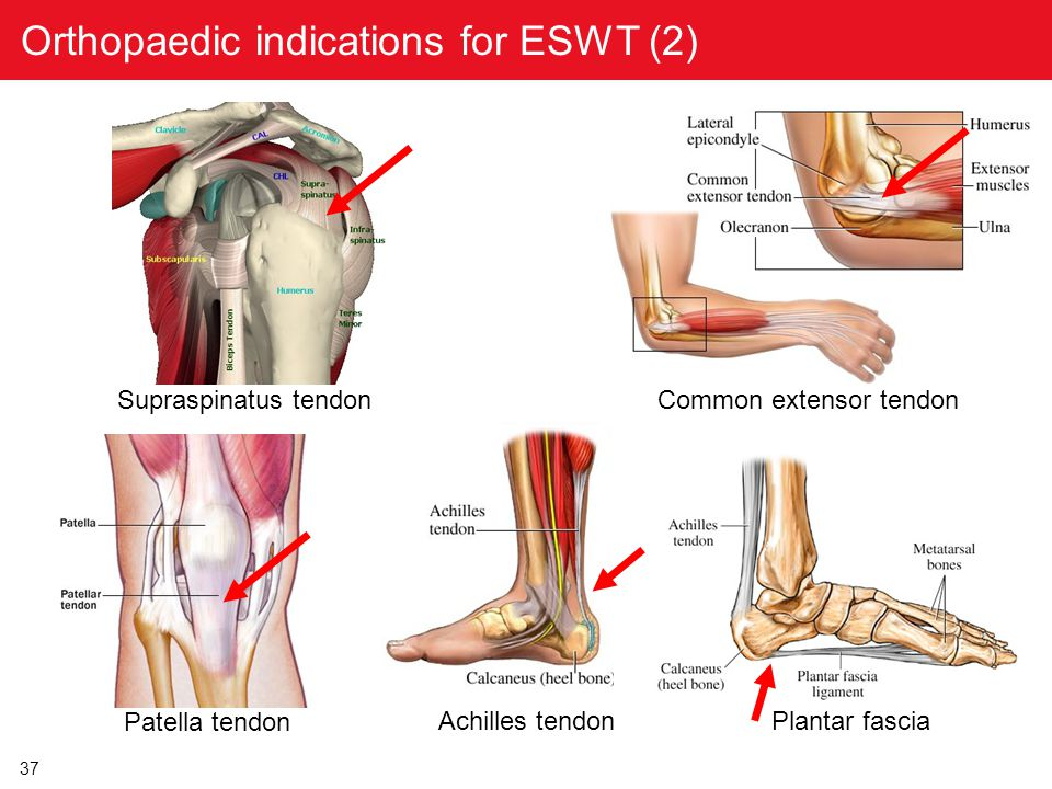 Orthopaedic indications for ESWT (2)