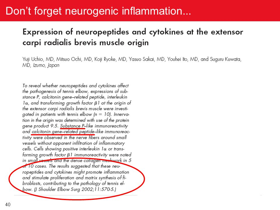Don't forget neurogenic inflammation...