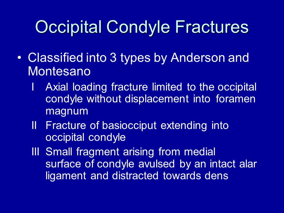Occipital Condyle Fractures